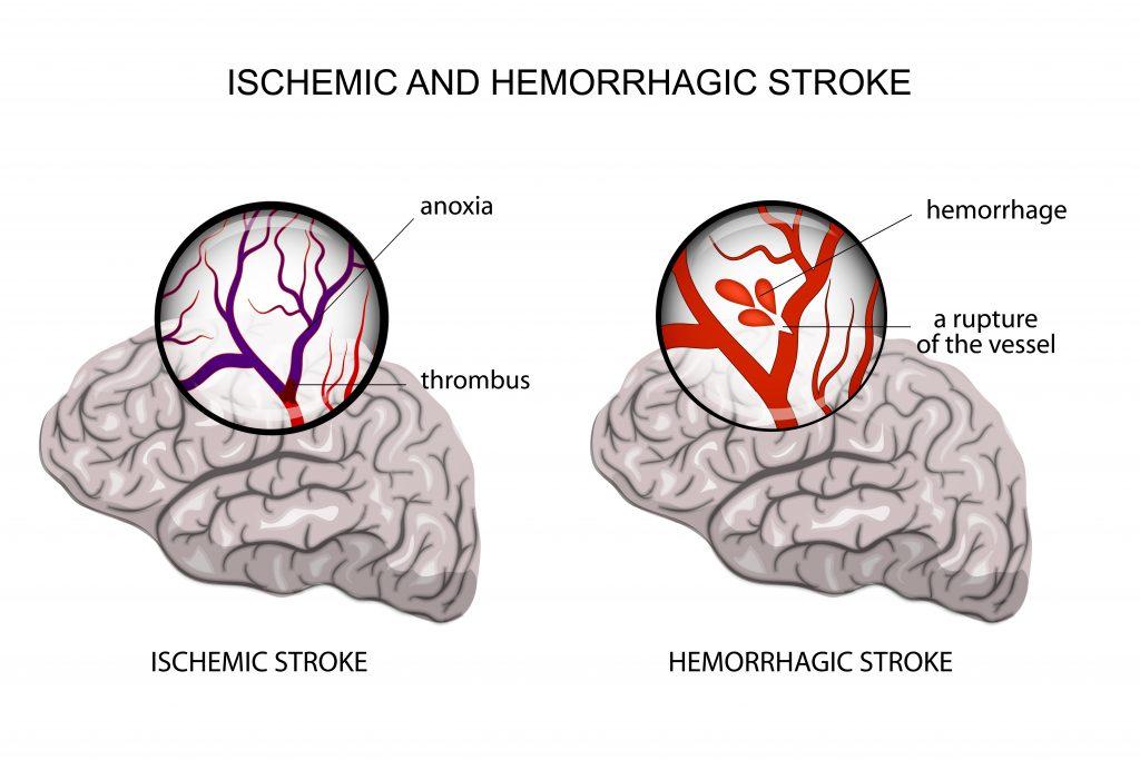 Pediatric Stroke Malpractice - Ohio Stroke Lawyer